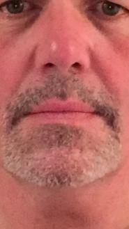 Mike Skidmore's Mustache Challenge