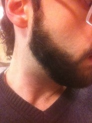 Pimp My Beard - $250 total donations will get me to shave