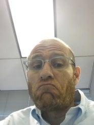 Ed's Folliclly Challenged Upper Lip - Take 2