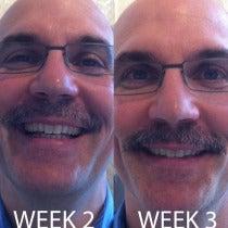 Dan Baroni's Mustache