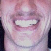 Brian Murtagh's Mustache